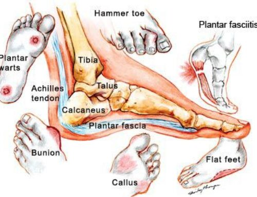 Everything You Need To Know About Bunions
